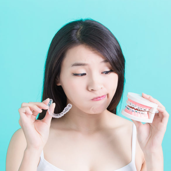 invisalign or braces, we'll help you choose. Band & Wire Orthodontics